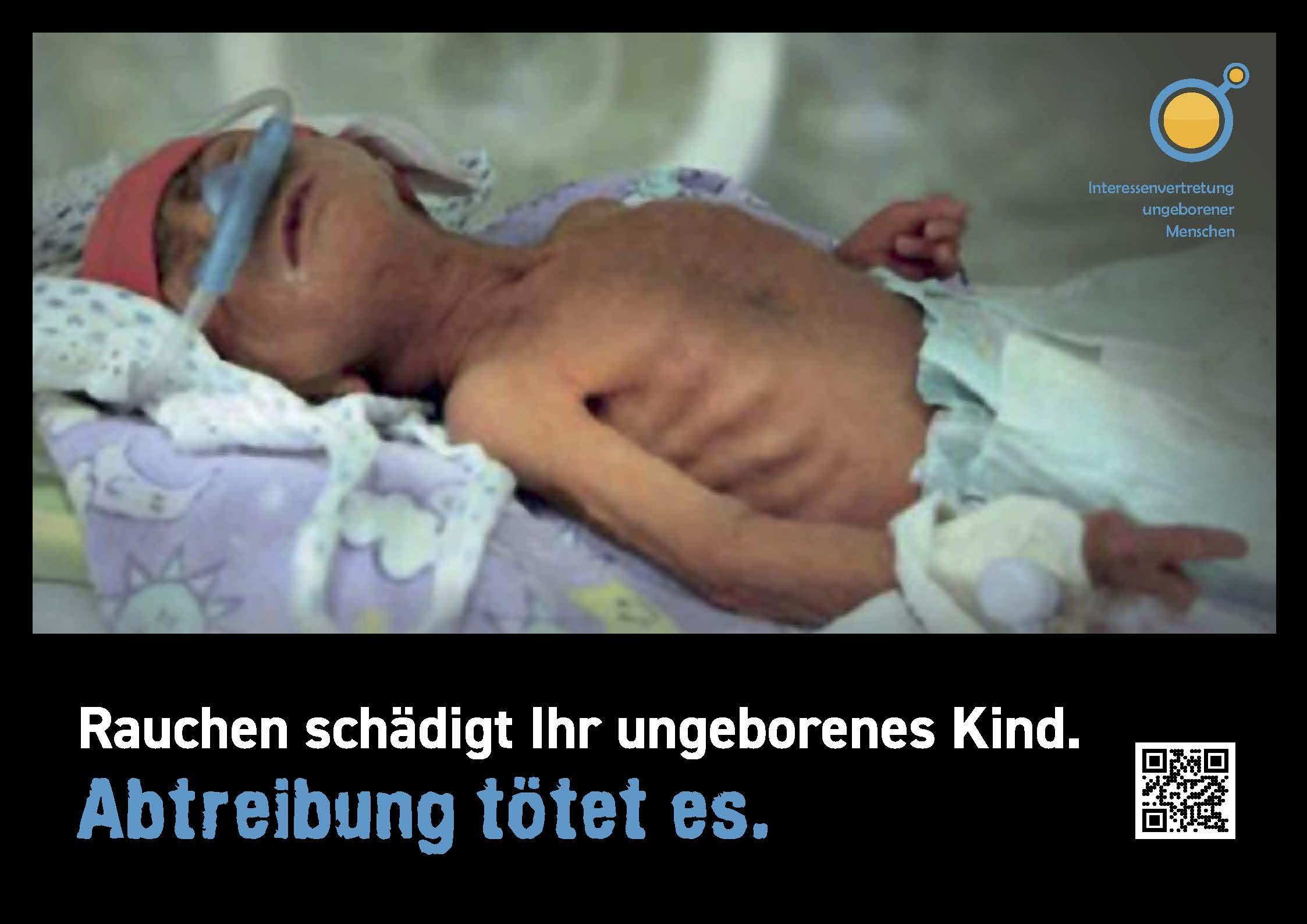 Rauchen schadet - Abtreibung tötet